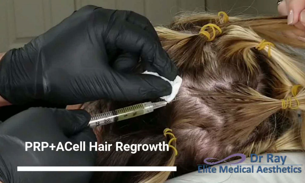 Best Hair loss treatment PRP ACELL Rocklin Roseville Dr Ray Baayti Elite Medical Aesthetics