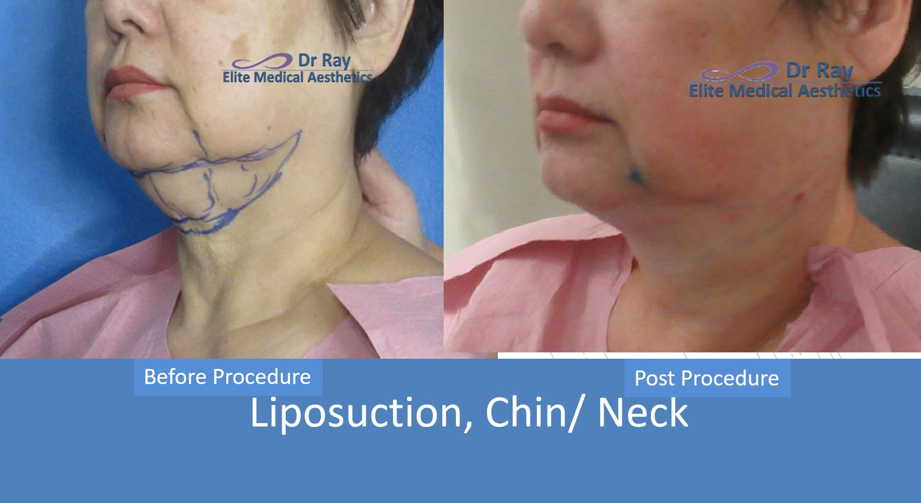 Best Neck Double Chin Liposuction Rocklin Elite MEdical Aesthetics Dr Ray Bayati oblique