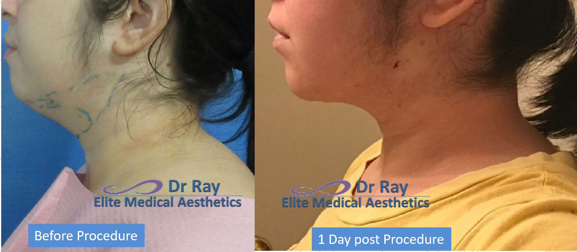 Best Neck Double Chin Liposuction Rocklin Elite MEdical Aesthetics Dr Ray Bayati