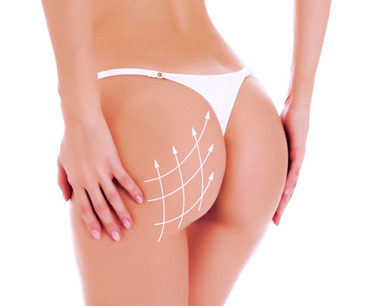 Butt Lift Fat Transfer Elite Medical Aesthetics Rocklin California