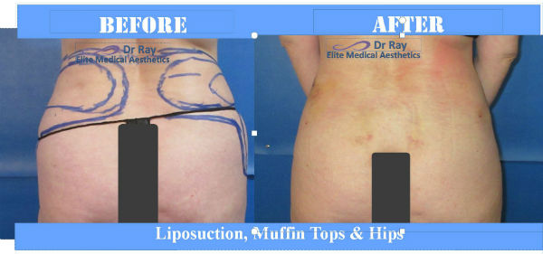 Liposuction Hip and Flanks Before & after one week Elite Medical Rocklin California s