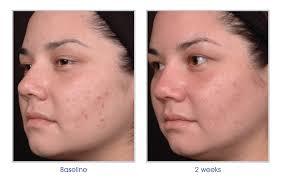 Obagi Cleziderm MD Acne Treatment Elite Medical Aesthetics Rocklin California