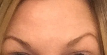 eyebrows uneven Elite MEdical Aesthetics Rocklin California