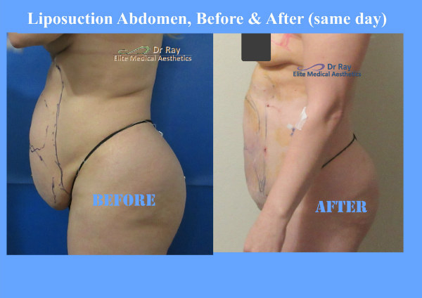 Liposuction Abdomen Before & After Elite Medical Aesthetics Rocklin California MN