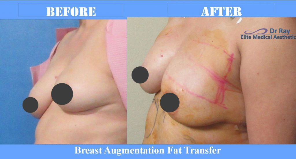 breast-augmentation-Elite Medical Aesthetics Rocklin California Breast Lift 2