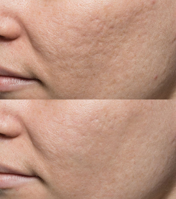 Acne Scar Before & After - Elite Medical Aesthetics Rocklin