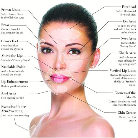 Best Botox Injections Wrinkles lines, Sacramento Rocklin Lowest price