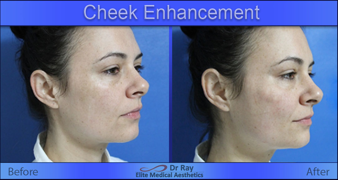 Non-Surgical Facelift Elite Medical Aesthetics Rocklin Sacramento