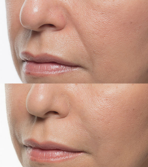 Smile_Patient_6_before_after Elite Medical Aesthetics