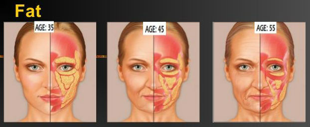 aging face Elite Medical Aesthetics Rocklin Ca