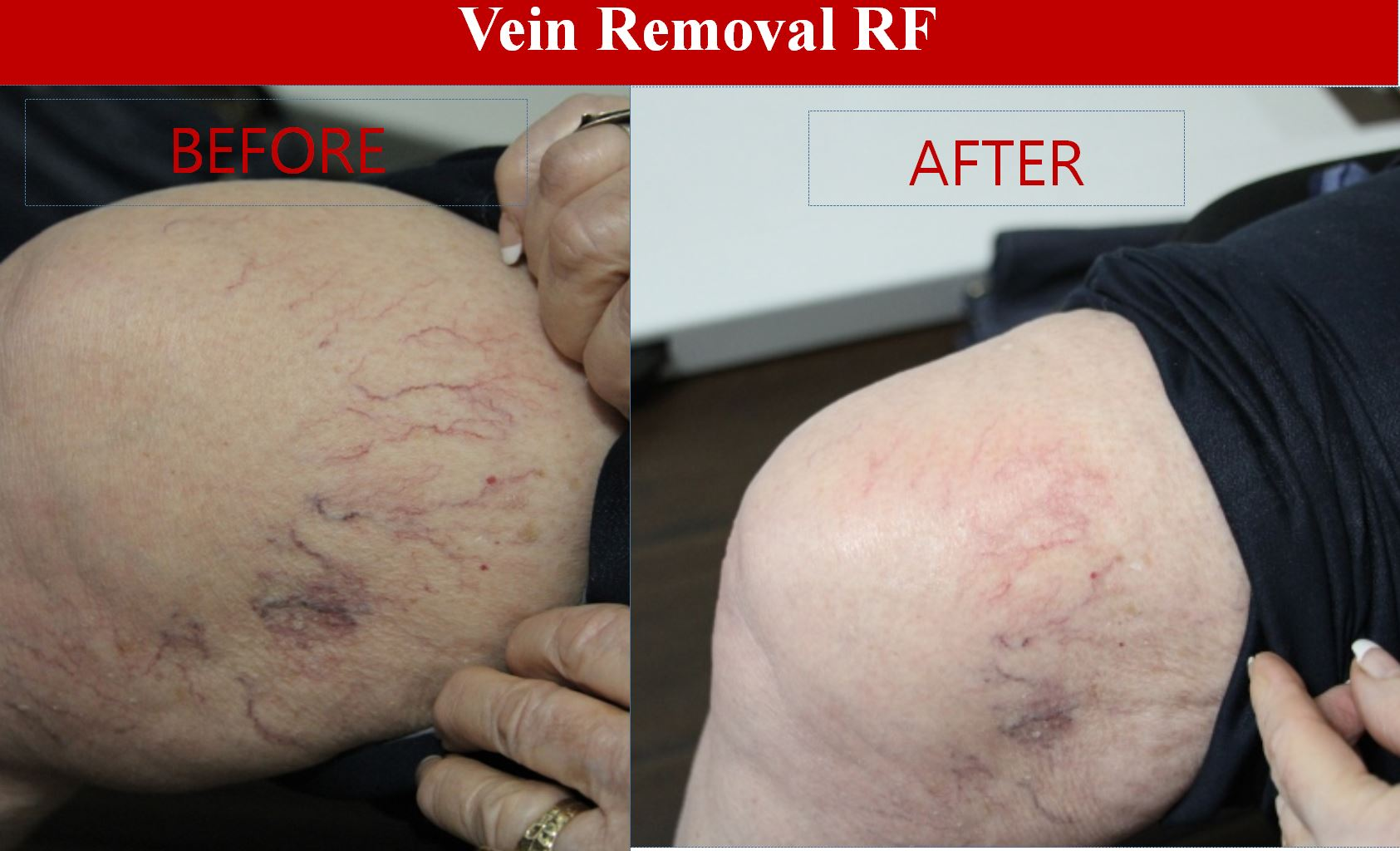 Vein Removal RF Elite Medical Rocklin