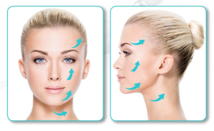 facelift thread lifting elite medical rocklin
