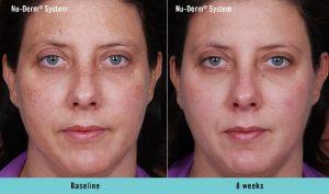 nu-derm-before-after- Obagi Skin care Elite MEdical Rocklin