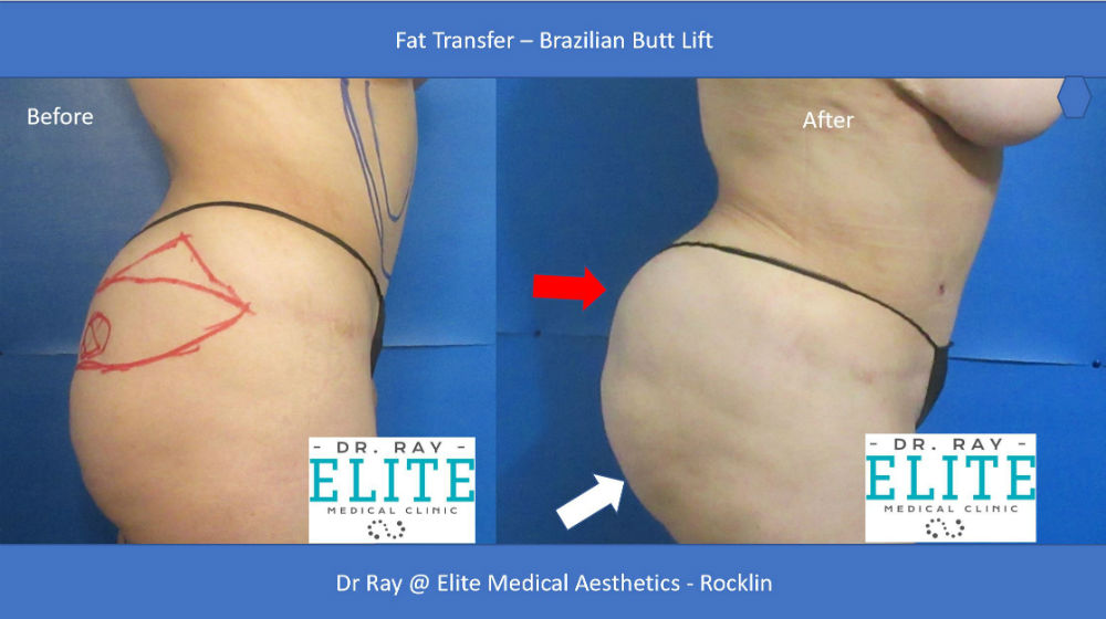 Fat Transfer Before After Butt Lift Elite Medical Aesthetics Rocklin