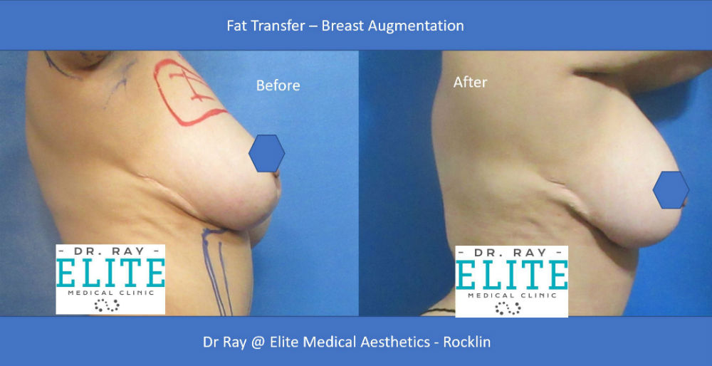 Fat Transfer Before After Elite Medical Aesthetics Rocklin Breast Augmentation
