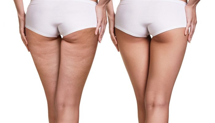 cellulite Non-Surgical Body Contouring