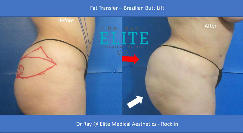 Butt Lift Before & After ELite MEdical Aesthetics Rocklin