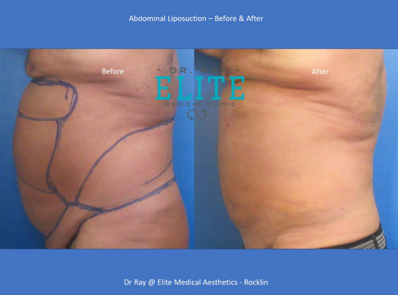 Liposuction Abdomen Flanks Before & After Dr Ray at Elite Medical Aesthetics Rocklin s