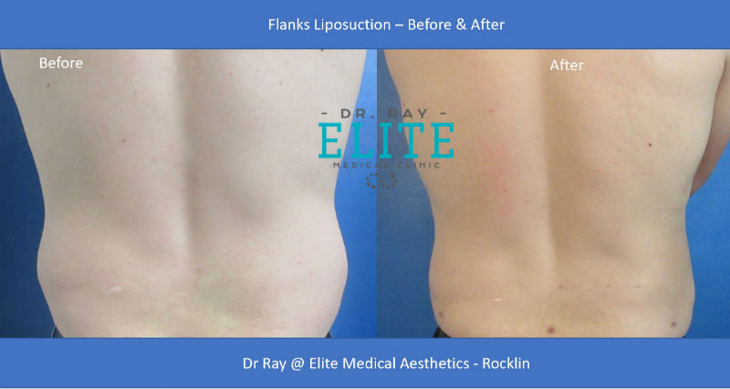 Liposuction Men Flanks Before & After Dr Ray at Elite Medical Aesthetics Rocklin s