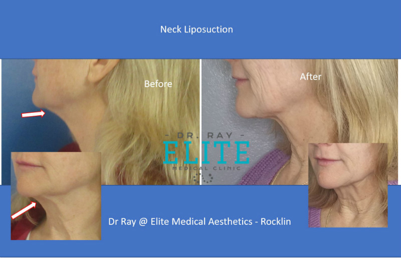 liposuction Neck Before & After Dr Ray Elite Medical Aesthetics Rocklin s
