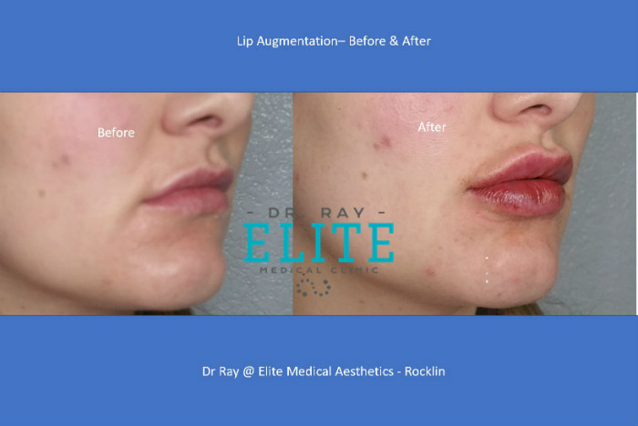 Lip Augmentation Before & AFter Dr Ray Elite Medical Rocklin 2019 s