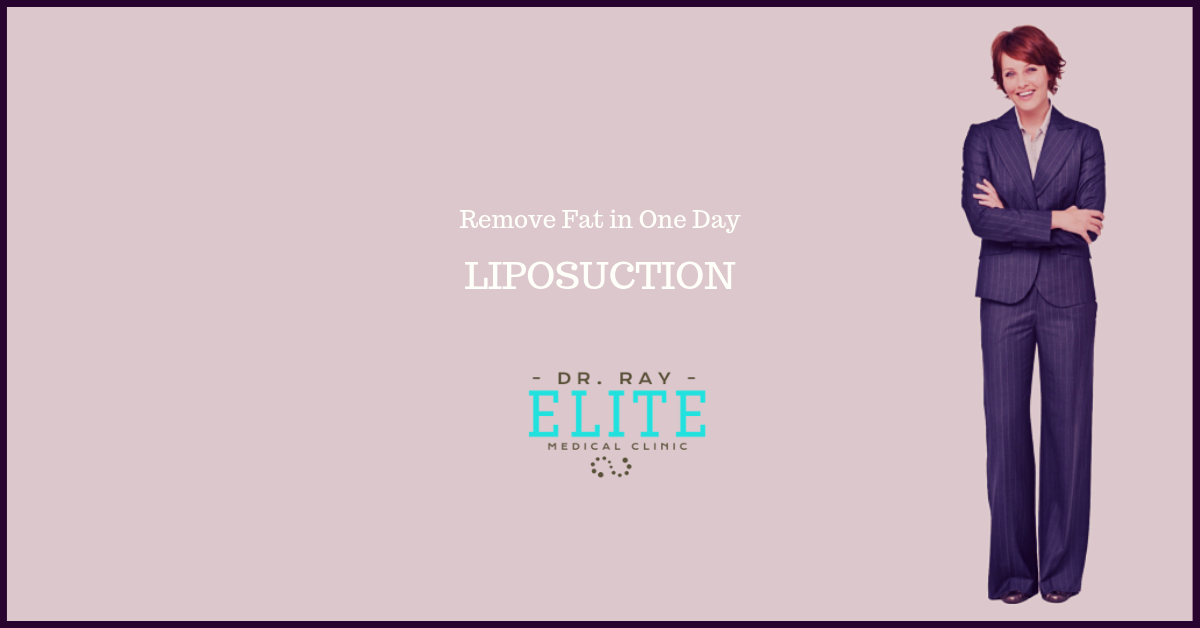 Liposuction Specials at Elite Meidcal Aesthetics Rocklin offer 2019 4 w
