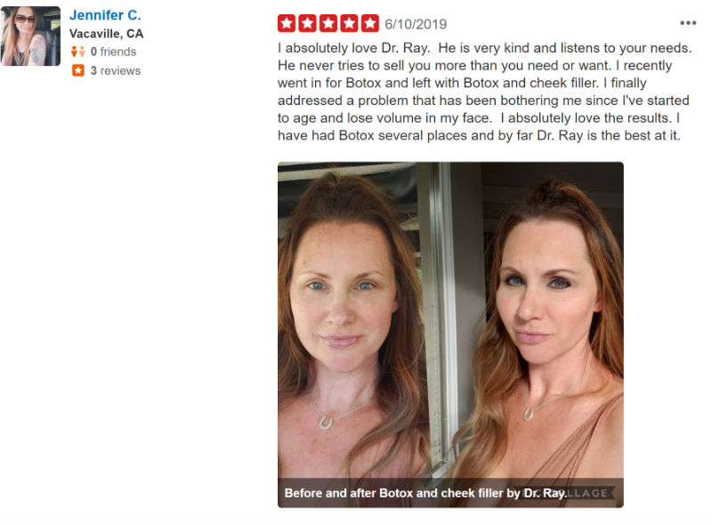Yelp review Jennifer C 2019 Dr Ray Botox Filler Facelift
